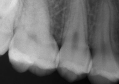 radiografia 5