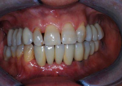 implantologia-5