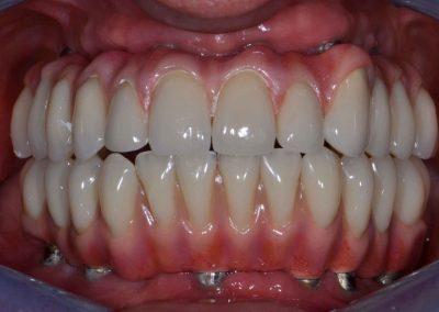 implantologia-8